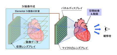 IV_system_01_jp.jpg